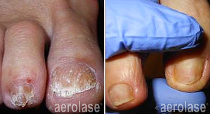 nail-fungus-before-after-2